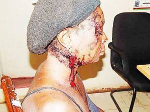 Woman beaten by cop husband.